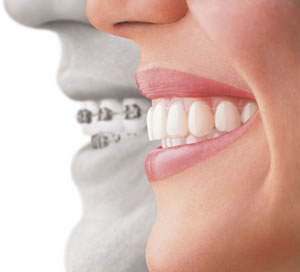 Invisalign-in-sherman-oaks