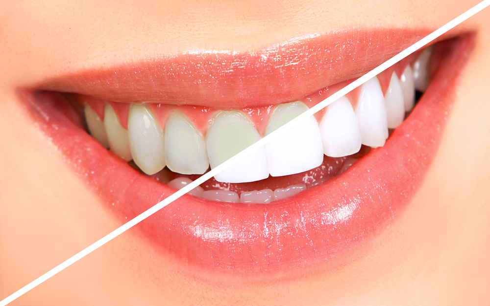 Teeth Whitening Sherman Oaks