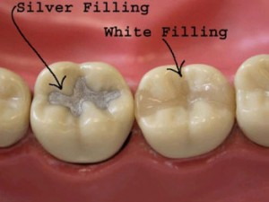 dental fillings sherman oaks