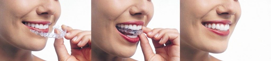 invisalign-sherman-oaks
