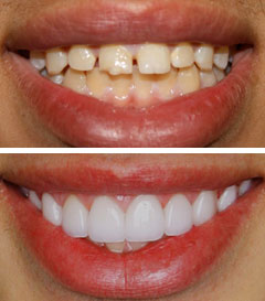 porcelain veneers in sherman oaks