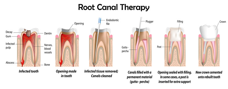 root canal sherman-oaks
