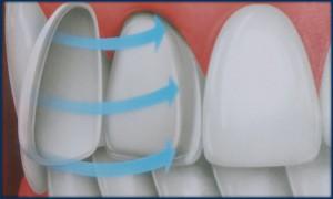 Porcelain veneers Sherman Oaks