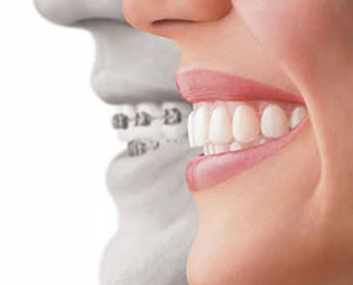 Invisalign Sherman oaks